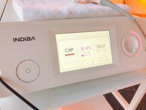 indiba新機種ER200